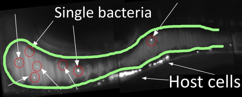 gut w/ bacteria